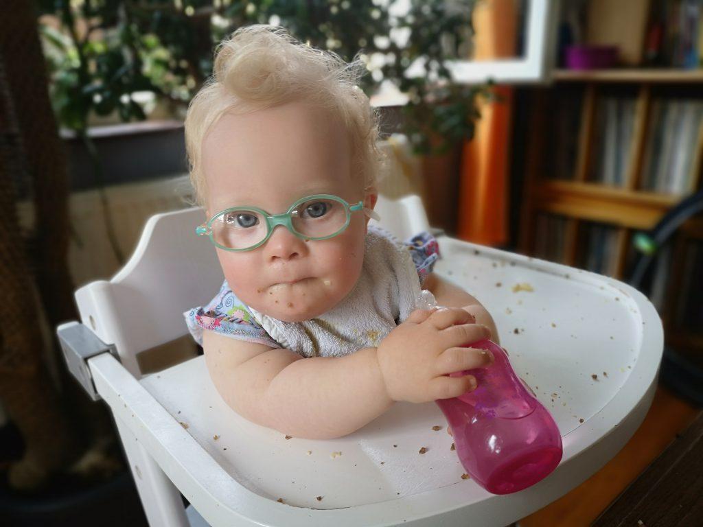 Baby mit Down Syndrom hält die Flasche