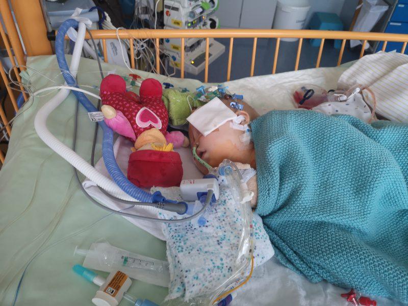Baby nach Herzoperation auf Intensivstation